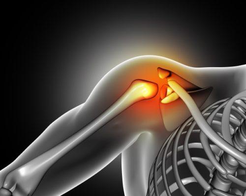 pain-shoulder-joint_1048-2649
